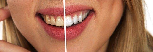 Resultat av att bleka tänderna hemma